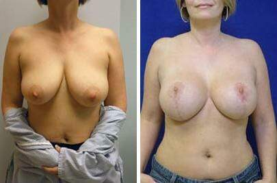 Breast Lift with Implants Before and After Photos in Lexington, KY, Patient 7814