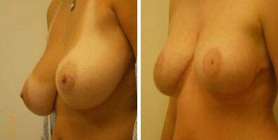 Breast Reduction Before and After Photos in Lexington, KY, Patient 7670
