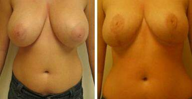 Breast Reduction Before and After Photos in Lexington, KY, Patient 7680