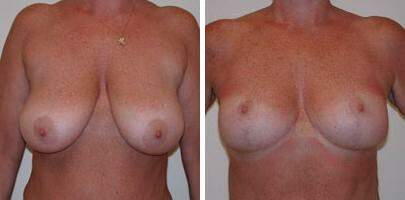 Breast Reduction Before and After Photos in Lexington, KY, Patient 7690