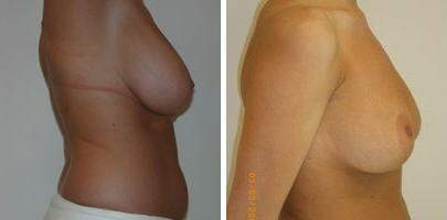 Breast Reduction Before and After Photos in Lexington, KY, Patient 7704