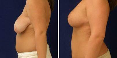 Breast Reduction Before and After Photos in Lexington, KY, Patient 7734