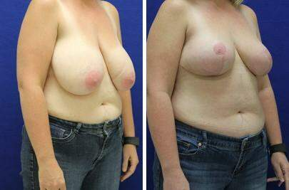 Breast Reduction Before and After Photos in Lexington, KY, Patient 7644
