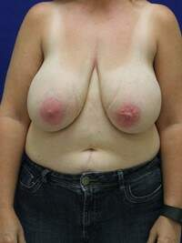 Breast Reduction in Lexington, before photo - Patient 7644