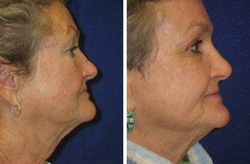 C02 Laser Skin Rejuvenation Before and After Photos in Lexington, KY, Patient 6902