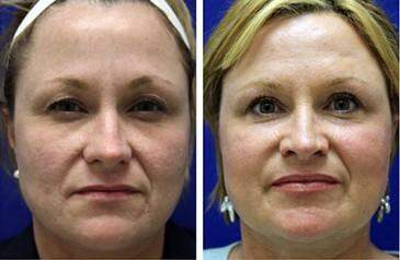 C02 Laser Skin Rejuvenation Before and After Photos in Lexington, KY, Patient 6932