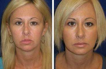 Chin Augmentation Before and After Photos in Lexington, KY, Patient 6710