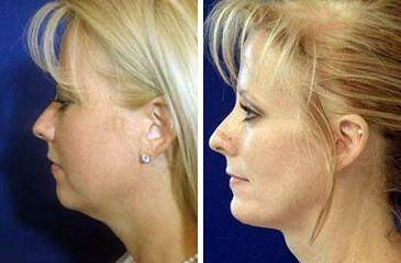 Chin Augmentation Before and After Photos in Lexington, KY, Patient 6720