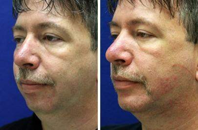 Chin Augmentation Before and After Photos in Lexington, KY, Patient 6753
