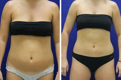 CoolSculpting® Before and After Photos in Lexington, KY, Patient 7340