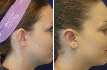 Ear Enhancements Before and After Photos in Lexington, KY, Patient 6763