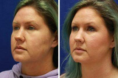 Injectable Fillers Before and After Photos in Lexington, KY, Patient 6810