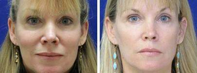 Before and After Photos in , , Restylane® Silk