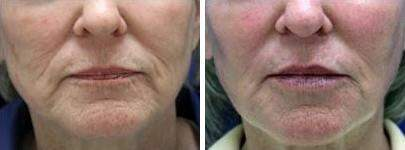 Injectable Fillers Before and After Photos in Lexington, KY, Patient 6868