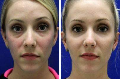 Injectable Fillers Before and After Photos in Lexington, KY, Patient 6888