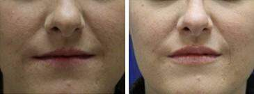 Injectable Fillers Before and After Photos in Lexington, KY, Patient 6822