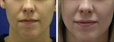Injectable Fillers Before and After Photos in Lexington, KY, Patient 6826