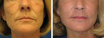 Injectable Fillers Before and After Photos in Lexington, KY, Patient 6830