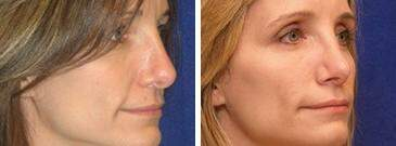 Injectable Fillers Before and After Photos in Lexington, KY, Patient 6840