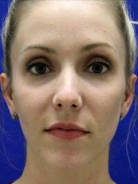 Injectable Fillers in Lexington, after photo - Patient 6888