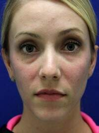 Injectable Fillers in Lexington, before photo - Patient 6888