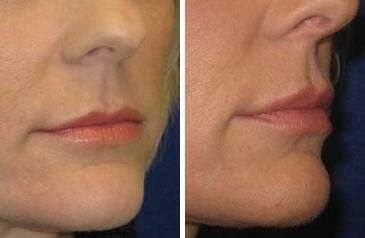 Lip Enhancement Before and After Photos in Lexington, KY, Patient 6970