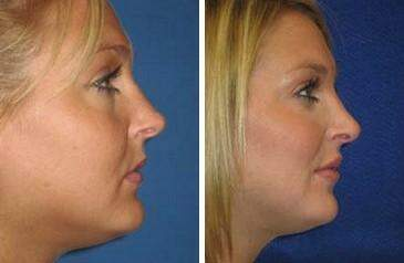 Lip Enhancement Before and After Photos in Lexington, KY, Patient 6980