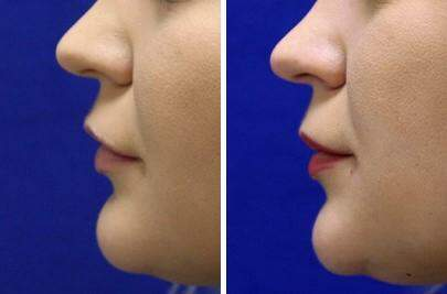 Lip Enhancement Before and After Photos in Lexington, KY, Patient 7000