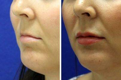 Lip Enhancement Before and After Photos in Lexington, KY, Patient 7010