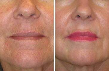 Lip Enhancement Before and After Photos in Lexington, KY, Patient 6946