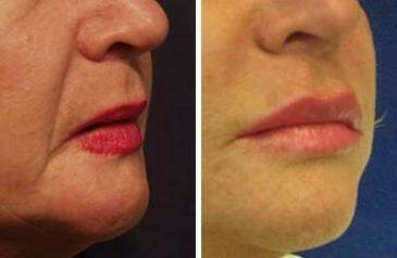 Lip Enhancement Before and After Photos in Lexington, KY, Patient 6956