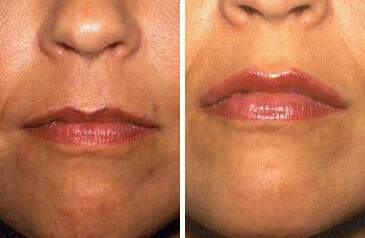 Before and After Photos in , , Lip Augmentation