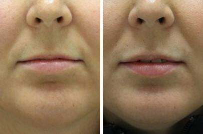 Lip Enhancement Before and After Photos in Lexington, KY, Patient 6936