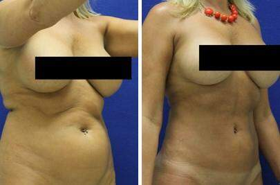 Liposuction Before and After Photos in Lexington, KY, Patient 7524