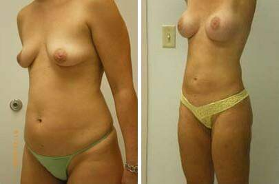 Liposuction Before and After Photos in Lexington, KY, Patient 7554
