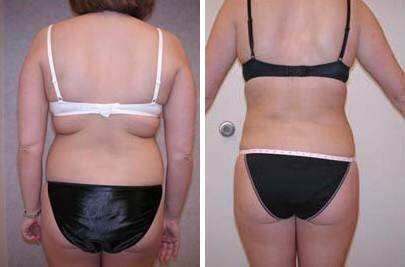 Liposuction Before and After Photos in Lexington, KY, Patient 7564