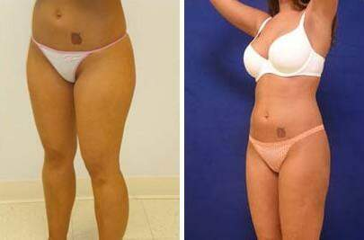 Liposuction Before and After Photos in Lexington, KY, Patient 7574