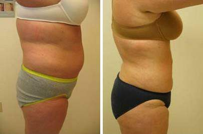 Liposuction Before and After Photos in Lexington, KY, Patient 7584