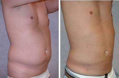 Liposuction Before and After Photos in Lexington, KY, Patient 7594