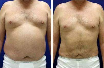 Liposuction Before and After Photos in Lexington, KY, Patient 7614