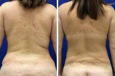 Liposuction Before and After Photos in Lexington, KY, Patient 7624