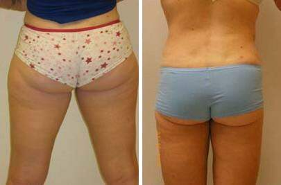 Liposuction Before and After Photos in Lexington, KY, Patient 7534