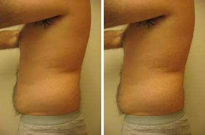 Liposuction Before and After Photos in Lexington, KY, Patient 7544