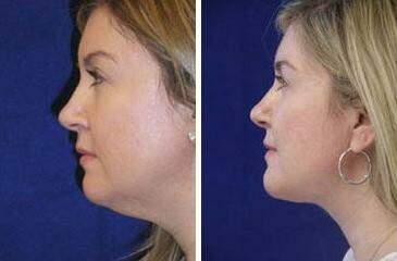 Neck Liposuction Before and After Photos in Lexington, KY, Patient 7228