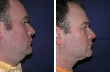 Neck Liposuction Before and After Photos in Lexington, KY, Patient 7239