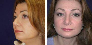 Neck Liposuction Before and After Photos in Lexington, KY, Patient 7256