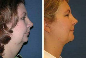 Neck Liposuction Before and After Photos in Lexington, KY, Patient 7263