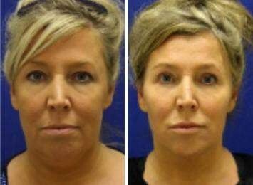 Neck Liposuction Before and After Photos in Lexington, KY, Patient 7273