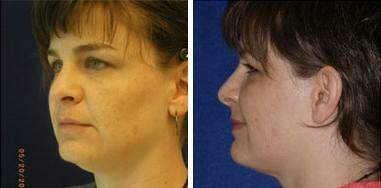 Neck Liposuction Before and After Photos in Lexington, KY, Patient 7218