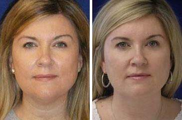 Neck Liposuction Before and After Photos in Lexington, KY